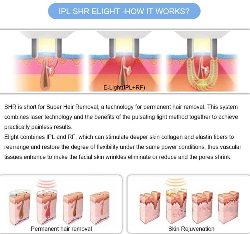 2020 OPT SHR IPL máquina cabelo IPL Dispositivo de Remoção OPT SHR Alemanha Laser Depilação indolor rejuvenescimento da pele IPL Laser
