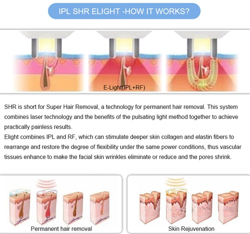 ipl laser for hair removal and pigment removal ipl technology slique hair removal new ipl machines