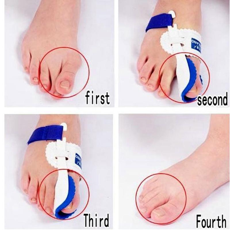 Dispositivo para juanetes Hallux Valgus Aparatos ortopédicos Corrección de los pies Cuidado de los pies por la noche Corrector Pulgar Buenas noches Ortopedia diaria de huesos grandes