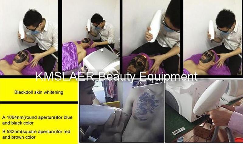 Heißer Verkauf ND YAG Laser Permanent Bart Haarentfernung Tattoo-Entfernungsmaschine