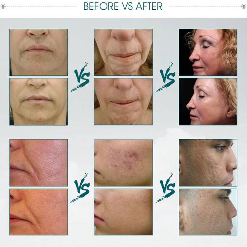 Equipement multifonctionnel facial de beauté / peau fractionnelle professionnelle de retrait de ride de thermage professionnel serrant la machine pour l'usage à la maison