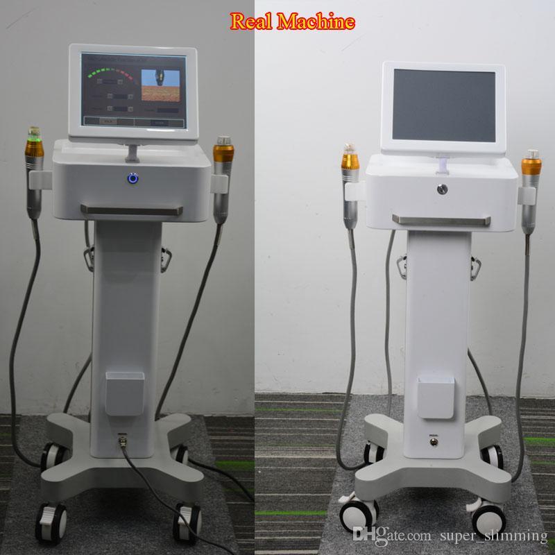 Machine micro d'aiguille fractionnelle de rf traitement de corps et de micro-aiguille microneedle