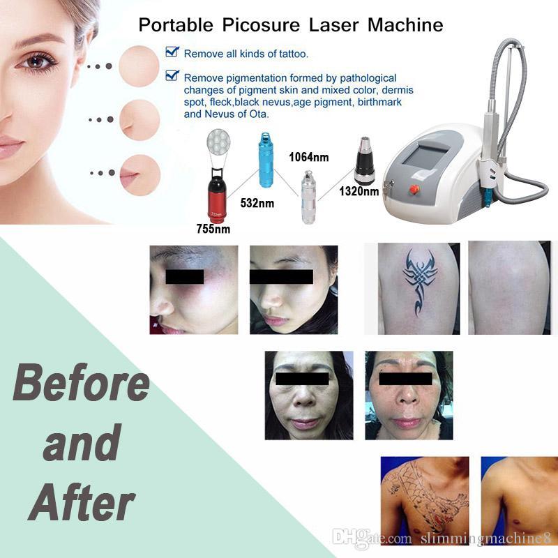 2019 nuovo arrivo !!! qswitch nd yag laser nd yag moduli laser attrezzature la rimozione del tatuaggio utilizzare il salone