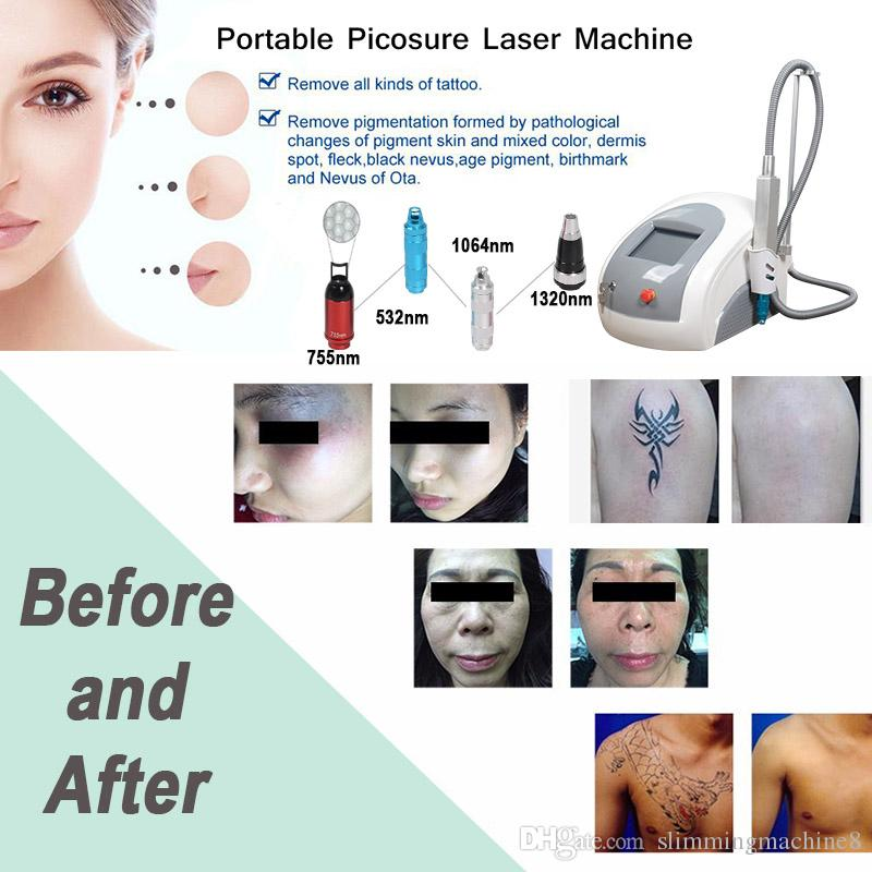 Fast Result picosecond laser mole spot remover tattoo removal equipment skin mole remover beauty machine online shopping
