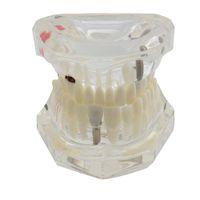 Diente dental Modelo de implante Análisis del estudio Demostración Restauración de la enfermedad Implante Enfermedad Modelo de los dientes Con el puente de restauración