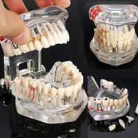 의료 과학 치과 질환 교육 연구에 대한 복원 브리지 치아 치과 의사와 핫 치과 임플란트 질병 치아 모델