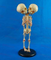 Human New born double head baby anatomy skull skeleton anato...