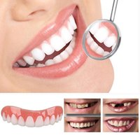 Falsche Zähne blätten auf