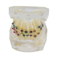 Modèle de dents dentaires orthodontiques standard avec crochets Tubes buccaux Modèle de dents Corret Malocclusion Modèle de traitement des dents à chaîne Elastolink