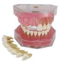 S-Oral Dental Implant Dientes Modelo de estudio Enseñar el modelo estándar con dientes extraíbles