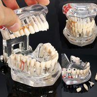 Wholesale dental teeth models resale online - Hot Dental Implant Disease Teeth Model With Restoration Bridge Tooth Dentist For Medical Science Dental Disease Teaching Study