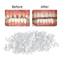 100g Tooth Repair Set Teeth And Gap Falseteeth Solid Glue Denture Adhesive Teeth Dentist Resin FalseTeeth Solid Glue Temporary