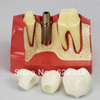Wholesale Dental Implant Demonstration Models - Dentist lab Dental Demonstration Implant model with orthodontics for oral hygiene Teeth whitening as seen on tiv products