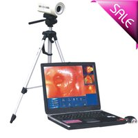 Wholesale Advanced Laptop Electronic colposcope with sony camera handheld colposcope machine laptop colposcope machine with CE ISO stable colposcop