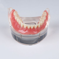 Wholesale Dental Implant Demonstration Models - Wholesale- Human Dental lab denture teeth anatomy Removable Overdenture Inferior with 4 Implants Demonstration Teeth Model pathology Model