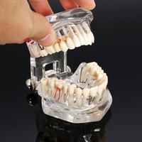 Wholesale Medical Science Model - Dental Implant Disease Teeth Model With Restoration Bridge Tooth Dentist For Medical Science Dental Disease Teaching Study