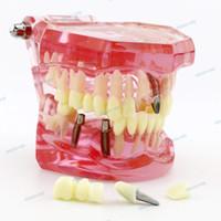 лифтовые листы оптовых-Зубной имплантат Teeth Model Study Teach Стандартная модель с реставрацией Розовый