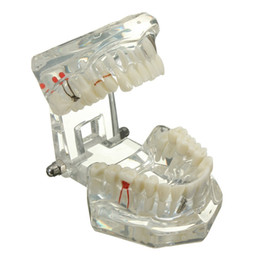 Wholesale Dentist Model - Transparent Dental Implant Disease Teeth Model Dentist Standard Pathological Removable Tooth Teaching Model Tools
