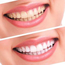 Wholesale Bleaching Pen For Teeth - whitening soap for sale Useful Teeth Whitening 44% Peroxide Dental Bleaching System Oral Gel Kit Tooth Whitener Dental Equipment H22