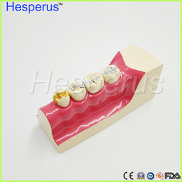 Wholesale Tissue Low - Dental teeth model Lower right posterior teeth tissue decomposition model Doctor - patient communication model with magnetic