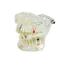 Denti implantari trasparenti Denti Modello dentista Strumenti patologici standard per denti didattici rimovibili da chiodi 21 fornitori