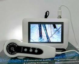 Scanner per la pelle online-Analisi dell'analizzatore dei capelli di Digital dello schermo LCD a 5 pollici Analisi dell'analizzatore dei capelli Analizzatore portatile ricaricabile Freeze frame Fixed CE