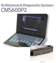 Vente en gros NOUVEAU CONTEC CMS600P2 + 3.5Mhz Sonde Convexe, Scanner à Ultrasons Numérique pour homme grand écran option de livraison gratuite 3 sonde
