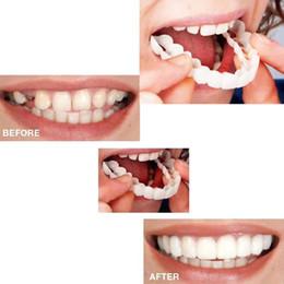 Belle Smile Impiallacciature Denti Bretelle Comfort Fit Cosmetico Resistenza all'usura Denti Protesi denti Top Simulazione di impiallacciature cosmetiche in Offerta