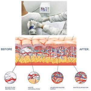 Vente chaude à haute efficacité Physiothérapie extracorporelle équipement de thérapie Shockwave ed / clinique et la maison ed machine thérapie Shockwave