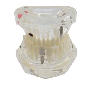 Стоматологические Зубы Модель Имплантат Исследование Анализ Демонстрация Болезнь Восстановлению Имплантат Болезни Зубов Модель С Восстановлением Моста