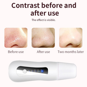 Ultrasonic Face Peeling Ion Skin Scrubber with Gift Eye Massager Facial Deep Cleaner Machine Lifting Tool Remove BlackheadRabin