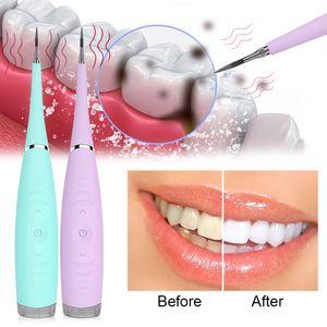 إزالة الأسنان الأسنان الأنظف الكهربائية بالموجات فوق الصوتية سونيك الأسنان المتسلق وحساب التفاضل والتكامل مزيل البقع بيض التتار أداة بيض