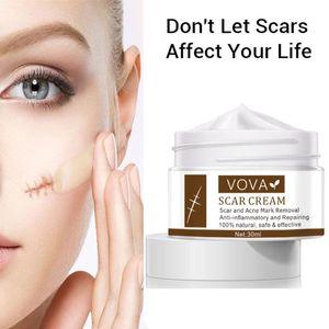 VOVA Acne Scar Removal Cream Remove Stretch Marks Acne Mark Anti Inflammatory Smoothing Whiten Pigmentation Corrector Skin Care