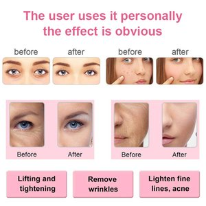 Blackhead Remover Vacuum Radiofrecuencia Facial EMS Mesotherapy Radio Frequency Skin Tightening Rejuvenation Face Pore CleanerRa