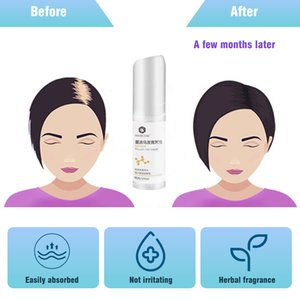 3Pc Fast Hair Growth Essence Oil Spray Anti Hair Loss Treatment Help for hair Growth Care Products for Men Women TonicScouts