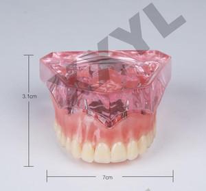 Стоматолог имплантат восстановление esqueleto anatomia болезни зубов анатомия человека скелет анатомическая модель для отбеливания зубов