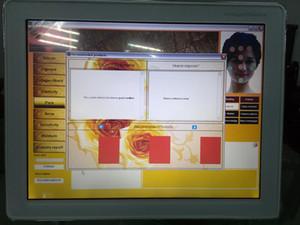 Sistema inteligente profissional do diagnóstico da pele da análise do analisador da pele da cara