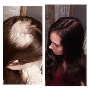 الأسهم الحرير الطبيعي قاعدة الإنسان القبعات العالية الشعر للنساء 2.5 * 5 بوصة 5 * 6 بوصة سقف كليب في الأعلى هيربيسي الشعر المستعار للالتخفيف الشعر