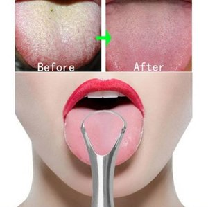 304 langue en acier inoxydable Scraper Tongue Cleaner raclement de la langue brosse Supprimer halitose Breath