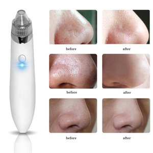 Wholesale Electric USB Charge Vacuum Blackhead Removal Acne Blemish Remover Device Blackhead Extractor Nose Blackhead Cleaner Tool
