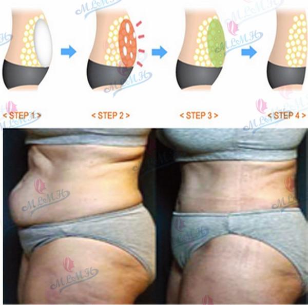 jengibre para adelgazar abdomen con crema