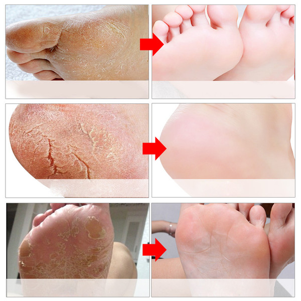 Baby Foot Peeling Renewal Foot Mask Remove Dead Skin Smooth Exfoliating Feet Care Socks for Pedicure Foot Treatment Product