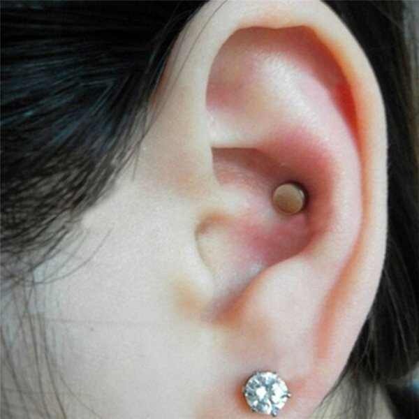 Bajar de peso con acupuntura en el oido