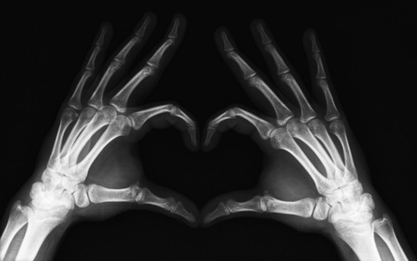 Funny X-Ray Love Heart Hands Art Silk Print Poster 24x36inch(60x90cm) 089