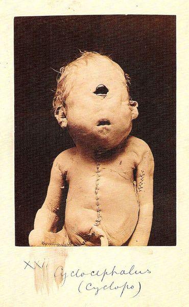 Victorian Medical Oddities Cyclops Baby Art Silk Print Poster 24x36inch(60x90cm) 089