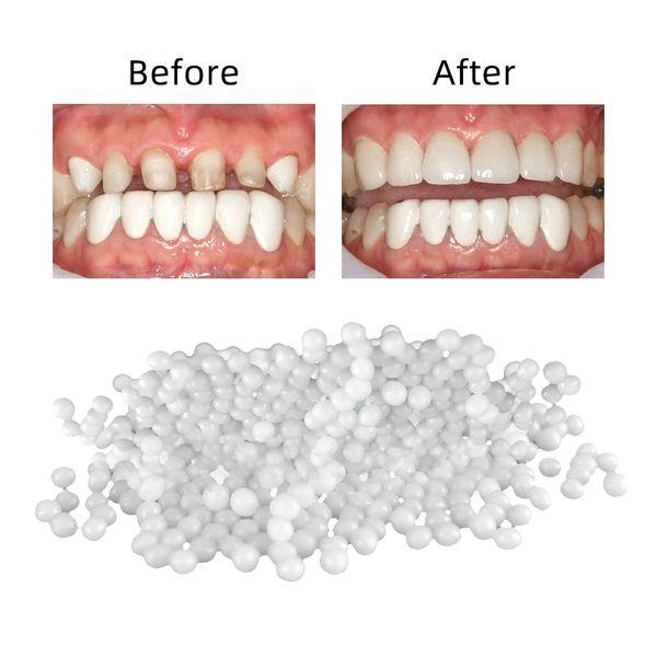 top popular 100g Tooth Repair Set Teeth And Gap Falseteeth Solid Glue Denture Adhesive Teeth Dentist Resin FalseTeeth Solid Glue Temporary 2021