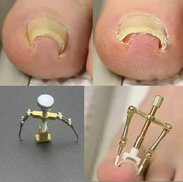 Toe Nails Fix Pedicure Braces Supports Nail Correction Tool for ...
