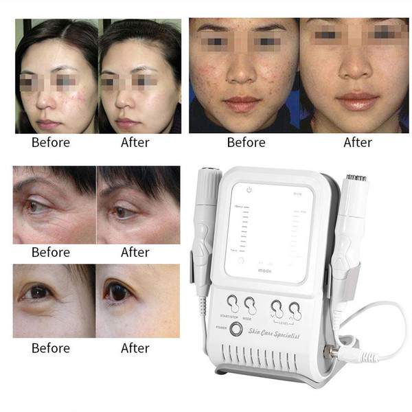 Mésothérapie de radiofréquence de machine faciale de beauté de rajeunissement de peau de 2 dans 1 multipolaire aucun retrait libre de ride d'aiguille