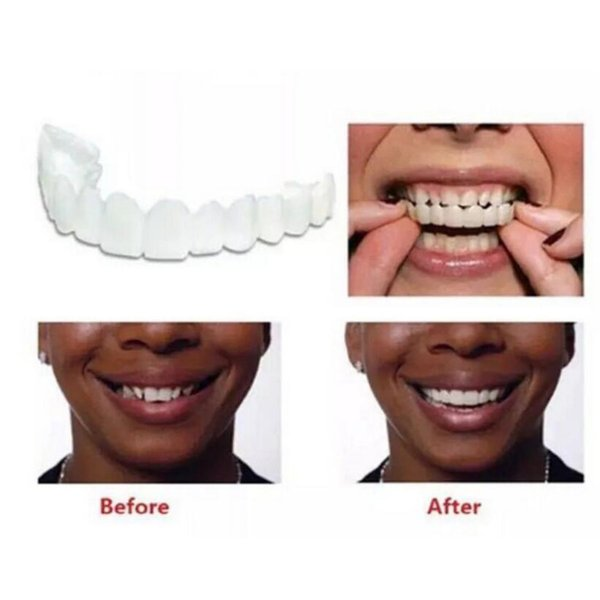 Snap On Smile Silicone Perfect Instant Smile Comfort Fit Flex Teeth  Whitening Denture Paste False Teeth Veneers Upper Cosmetic Fake Tooth White  Light