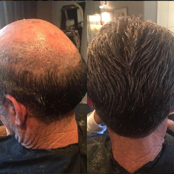 Acheter Système De Remplacement De Cheveux